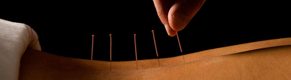 acupuncture-back2